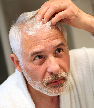 Hair Loss Causes Uncovered